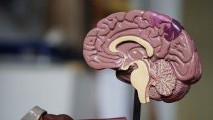 cbd dementia alzheimer's